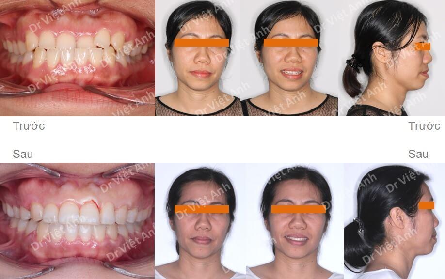 Niềng răng móm, khớp cắn ngược cho khách hàng 36 tuổi 2
