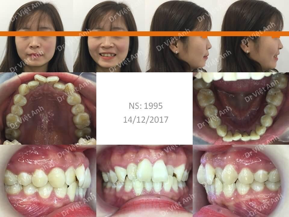 Niềng răng hô & khểnh bằng mắc cài sứ hoàn thành sau 22 tháng