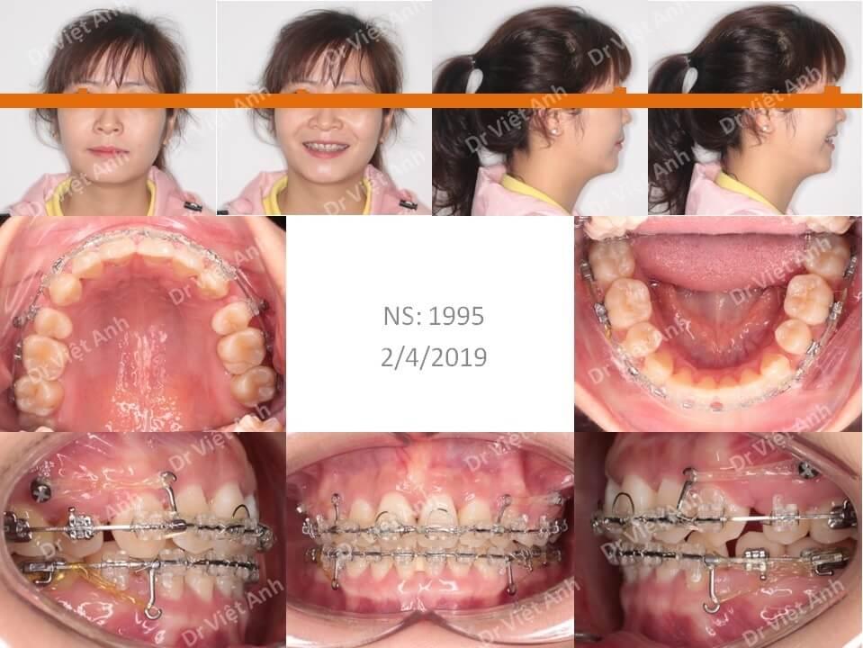 Niềng răng hô & khểnh bằng mắc cài sứ hoàn thành sau 22 tháng 2