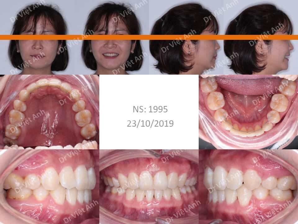 Niềng răng hô & khểnh bằng mắc cài sứ hoàn thành sau 22 tháng 1