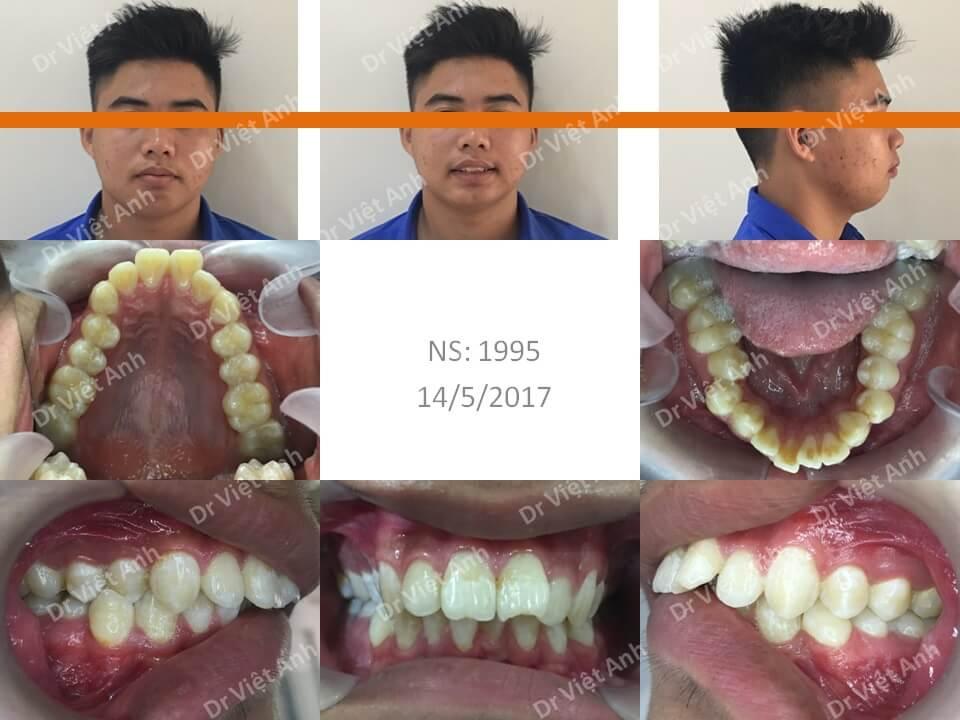 Niềng răng hô hàm trên, khớp cắn sâu bằng mắc cài pha lê