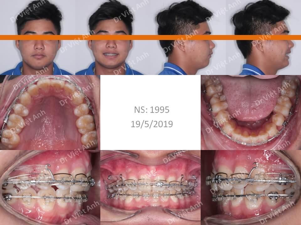 Niềng răng hô hàm trên, khớp cắn sâu bằng mắc cài pha lê 1