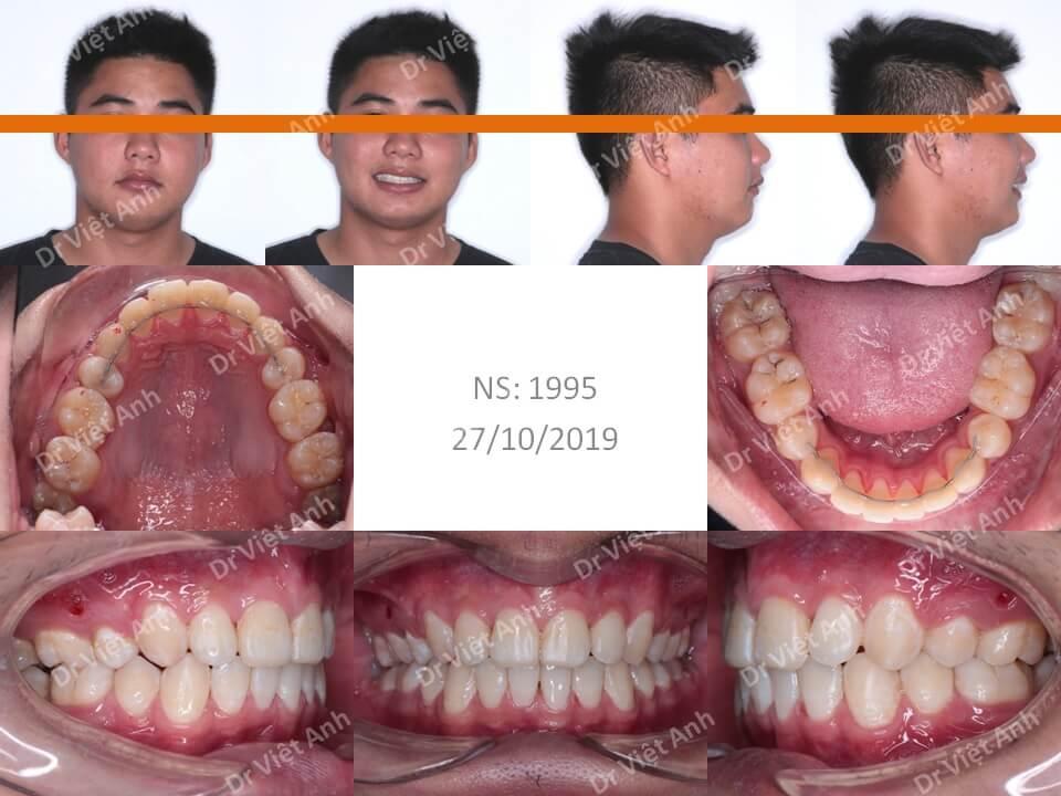Niềng răng hô hàm trên, khớp cắn sâu bằng mắc cài pha lê 2
