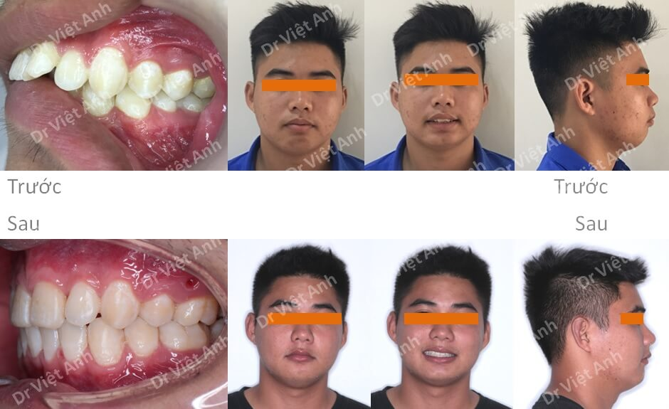 Niềng răng hô hàm trên, khớp cắn sâu bằng mắc cài pha lê 3