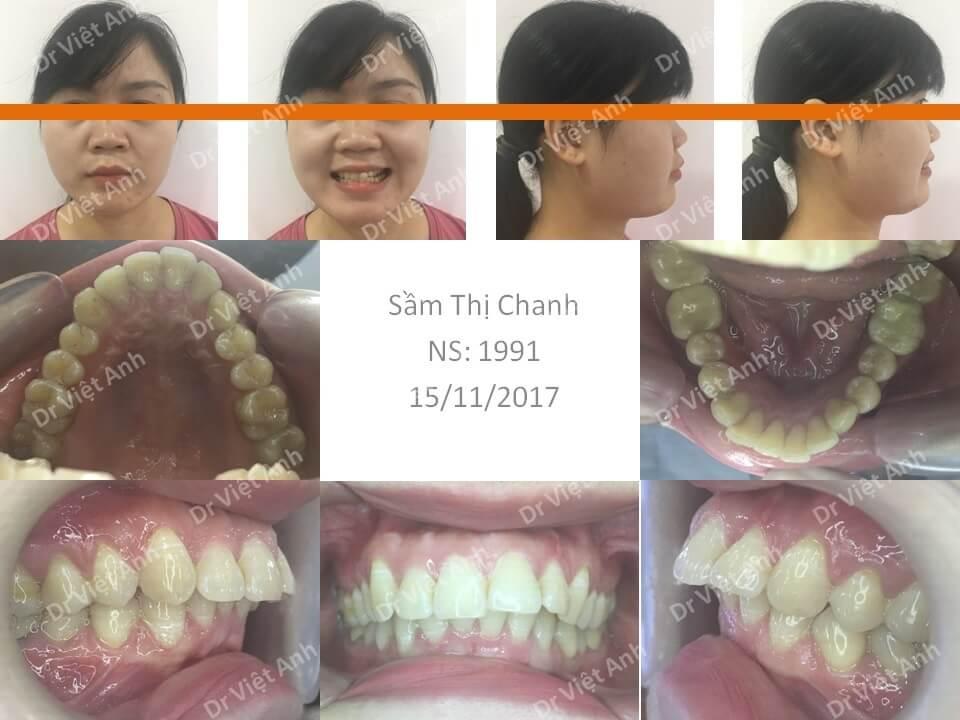 Niềng răng hô, khớp cắn hạng 2 hoàn thành sau 2 năm