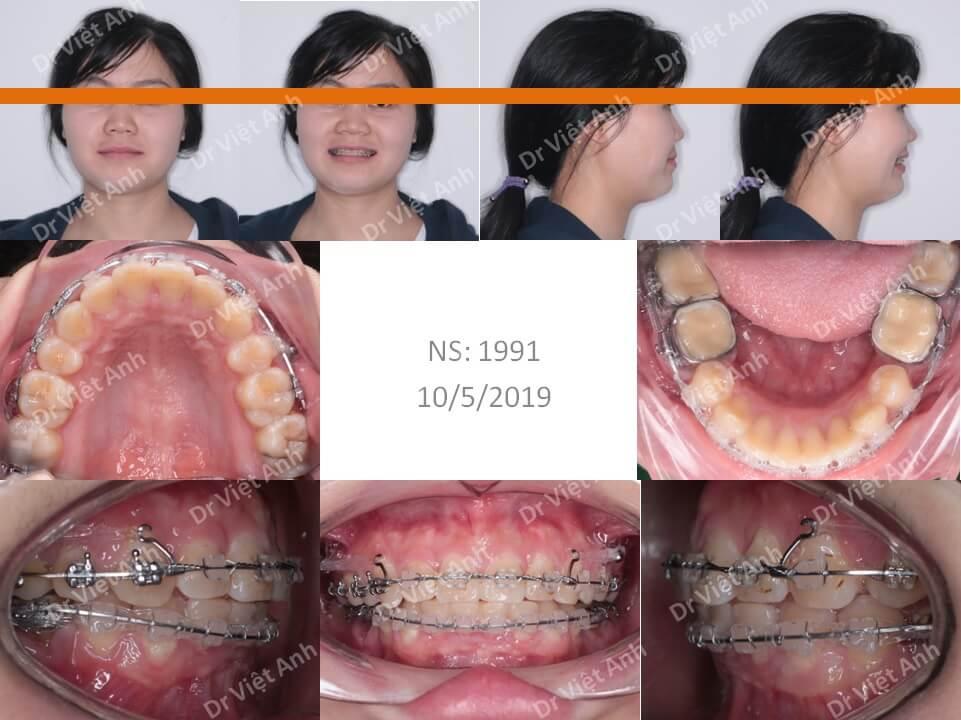 Niềng răng hô, khớp cắn hạng 2 hoàn thành sau 2 năm 1