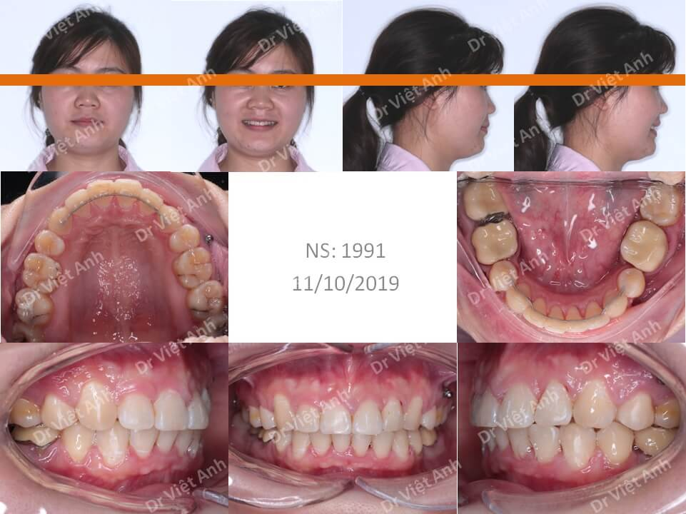 Niềng răng hô, khớp cắn hạng 2 hoàn thành sau 2 năm 2