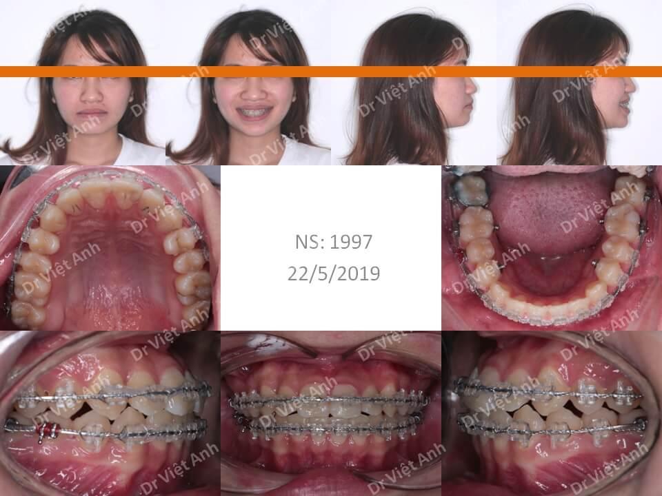 Niềng răng móm, khớp cắn ngược 2