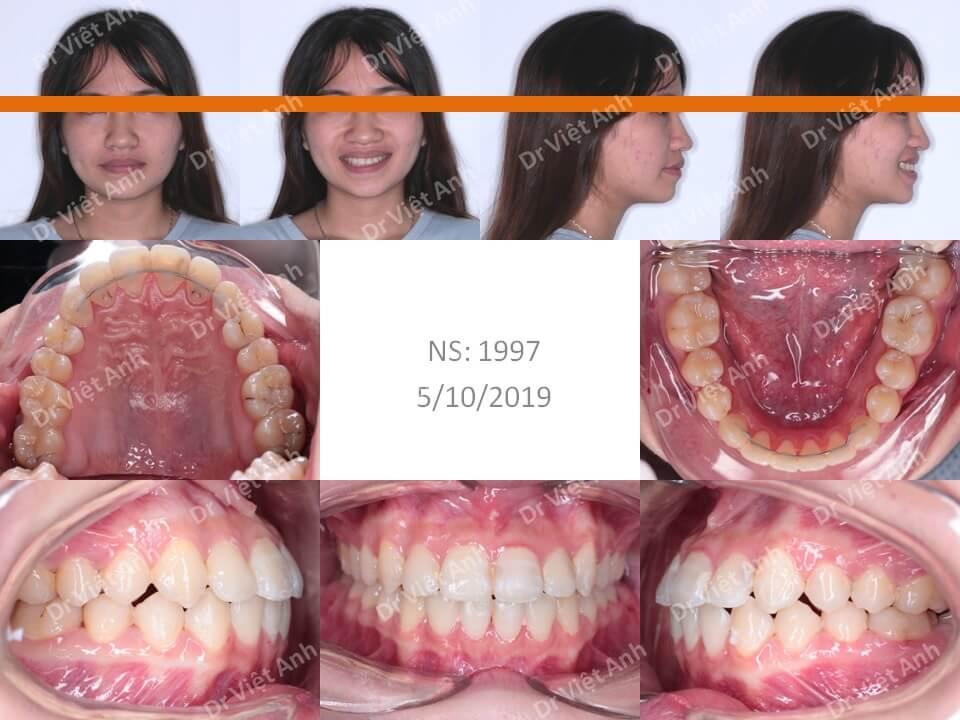 Niềng răng móm, khớp cắn ngược 1