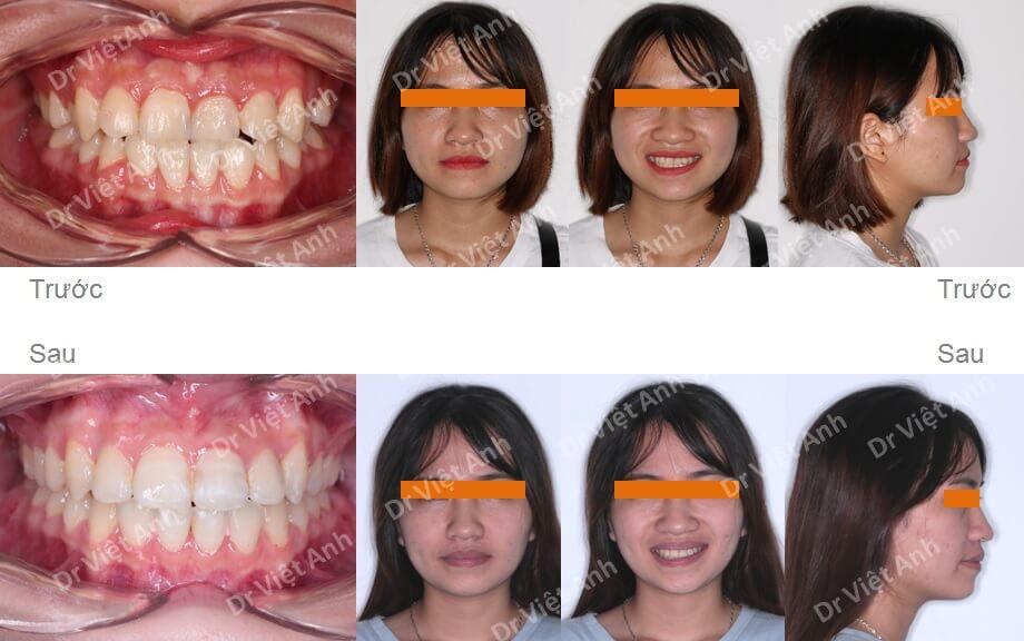 Niềng răng móm, khớp cắn ngược 3