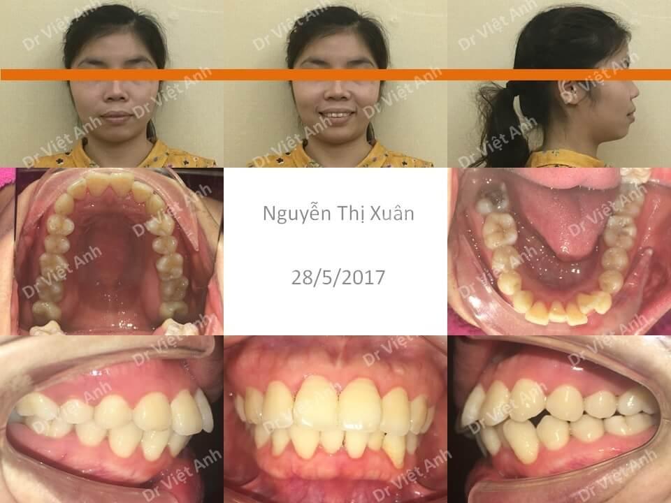 Niềng răng hô bằng mắc cài mặt lưỡi đem lại hiệu quả kinh ngạc 1
