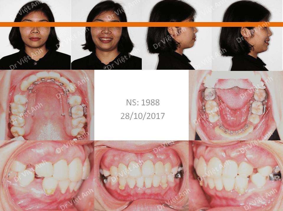 Niềng răng hô bằng mắc cài mặt lưỡi đem lại hiệu quả kinh ngạc 2