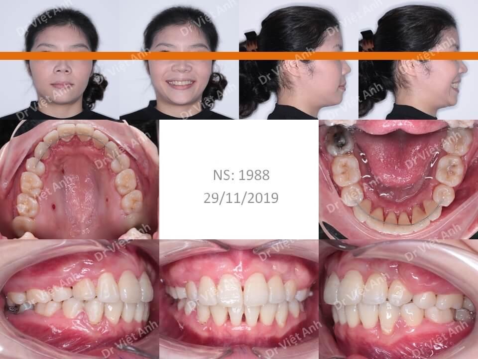 Niềng răng hô bằng mắc cài mặt lưỡi đem lại hiệu quả kinh ngạc 3