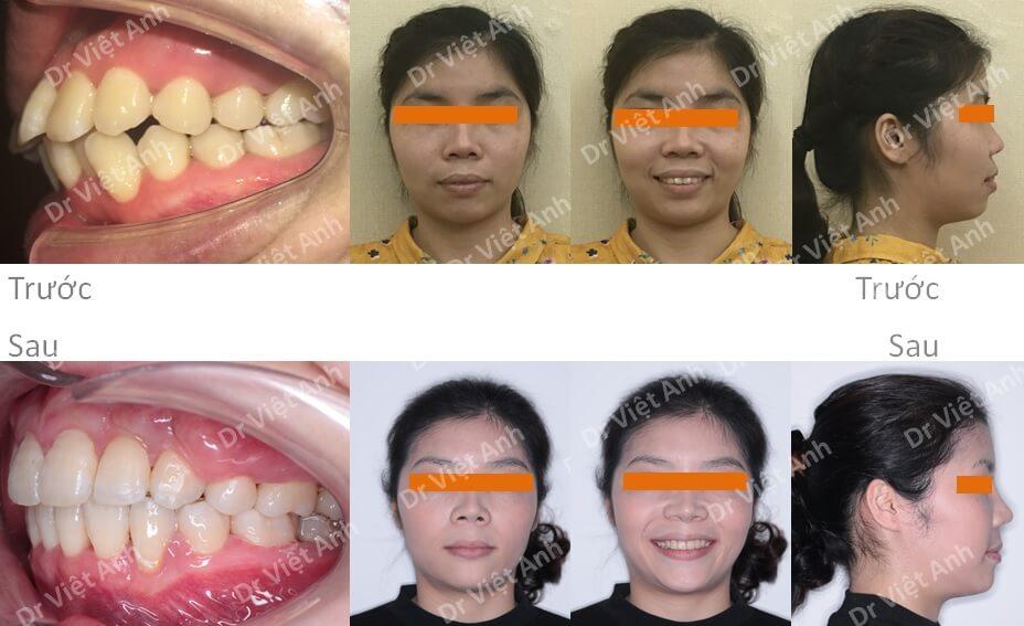 Niềng răng hô bằng mắc cài mặt lưỡi đem lại hiệu quả kinh ngạc 4