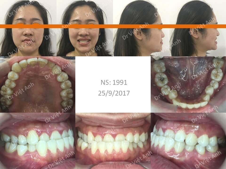 Trẻ ra hơn chục tuổi sau khi niềng răng móm bằng mắc cài mặt trong 1