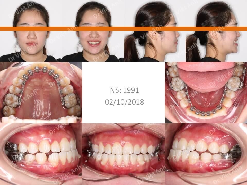 Trẻ ra hơn chục tuổi sau khi niềng răng móm bằng mắc cài mặt trong 2