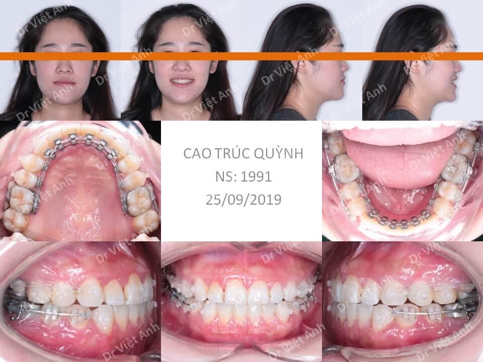Trẻ ra hơn chục tuổi sau khi niềng răng móm bằng mắc cài mặt trong 3