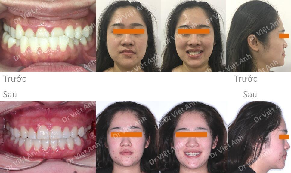 Trẻ ra hơn chục tuổi sau khi niềng răng móm bằng mắc cài mặt trong 5