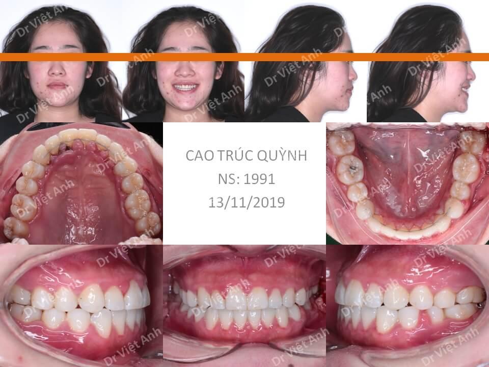 Trẻ ra hơn chục tuổi sau khi niềng răng móm bằng mắc cài mặt trong 4