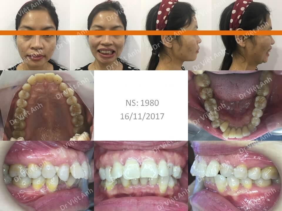 Niềng răng hô cho khách hàng 37 tuổi