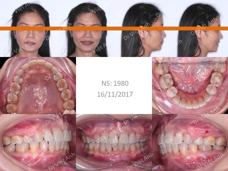 Niềng răng hô cho khách hàng 37 tuổi 1
