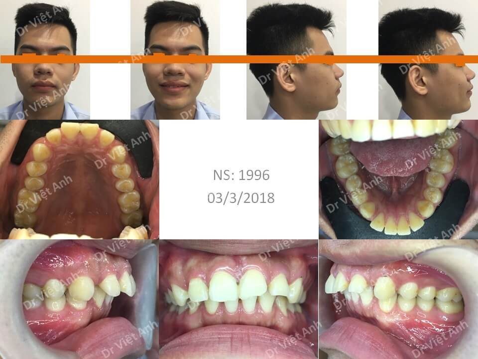 Niềng răng hô hàm trên, thưa, hoàn thành sau một năm rưỡi