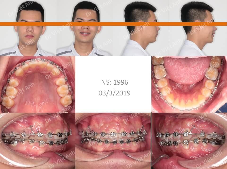 Niềng răng hô hàm trên, thưa, hoàn thành sau một năm rưỡi 1