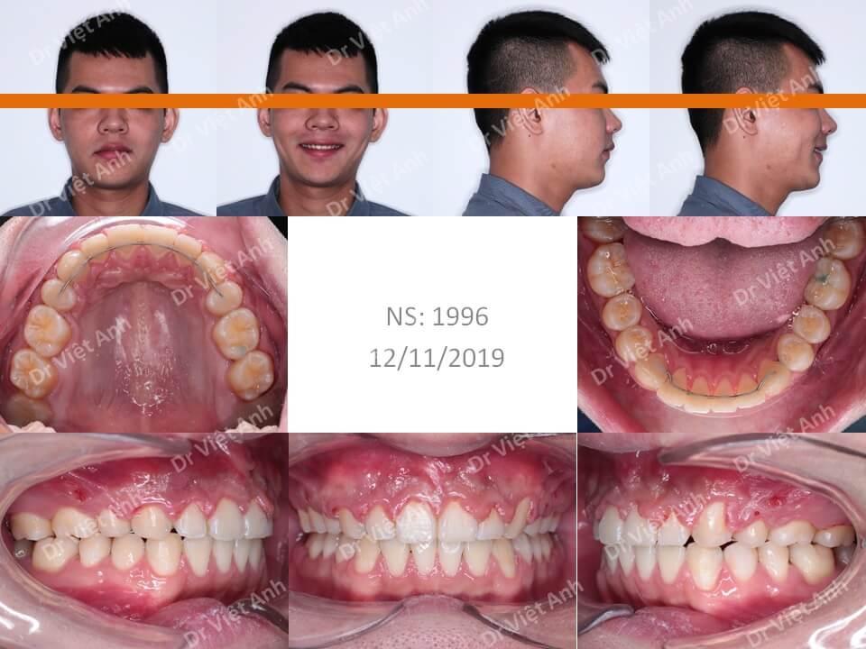 Niềng răng hô hàm trên, thưa, hoàn thành sau một năm rưỡi 2