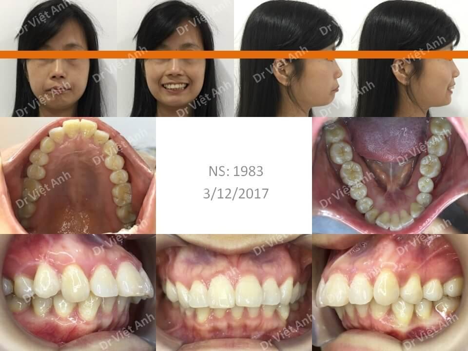Niềng răng mặt lưỡi điều trị hô cho khách hàng 34 tuổi thiếu răng cửa dưới