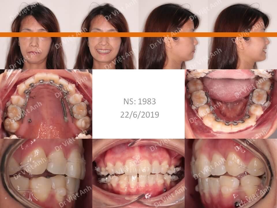 Niềng răng mặt lưỡi điều trị hô cho khách hàng 34 tuổi thiếu răng cửa dưới 11
