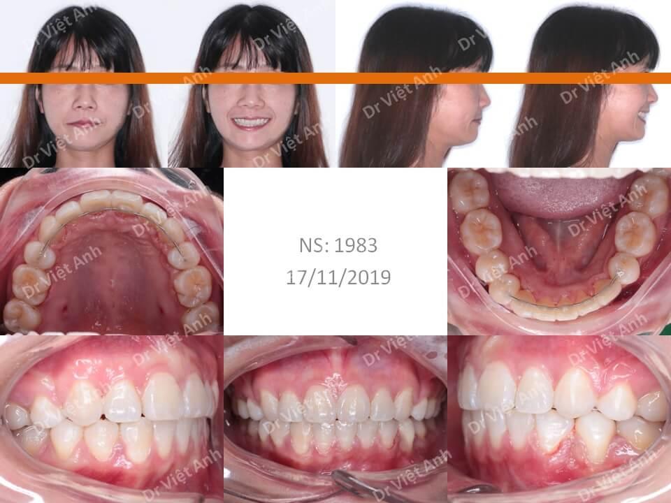 Niềng răng mặt lưỡi điều trị hô cho khách hàng 34 tuổi thiếu răng cửa dưới 12