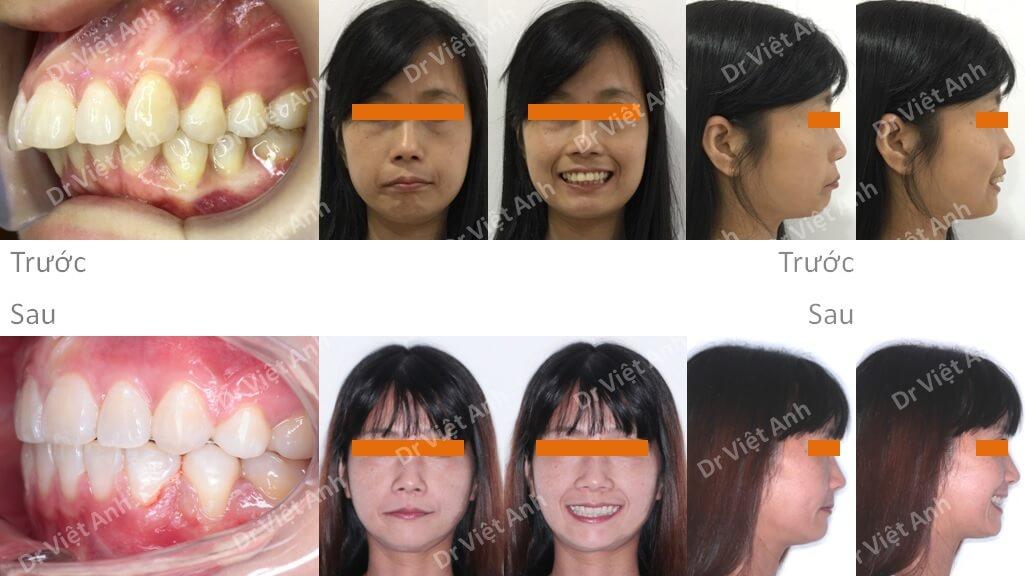 Niềng răng mặt lưỡi điều trị hô cho khách hàng 34 tuổi thiếu răng cửa dưới 13