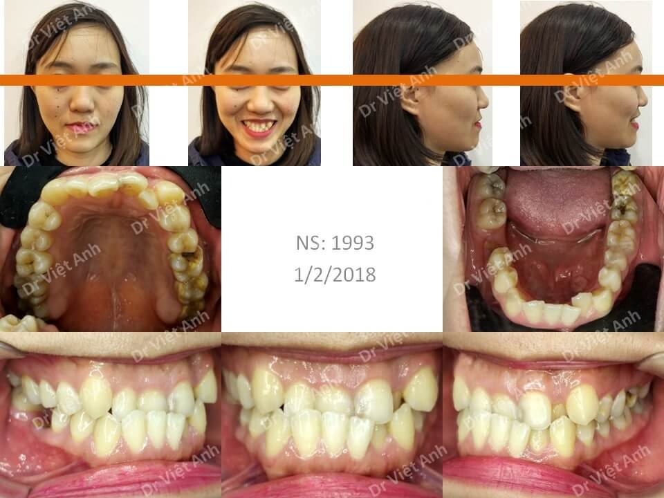 Niềng răng khớp cắn ngược, răng khấp khểnh lộn xộn
