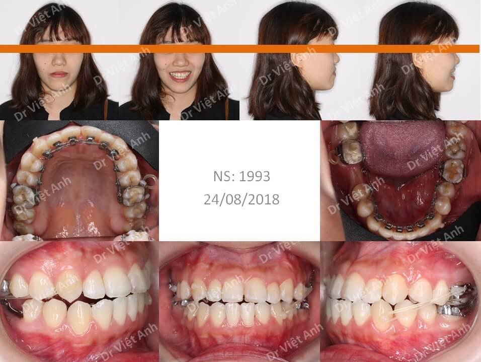 Niềng răng khớp cắn ngược, răng khấp khểnh lộn xộn  2