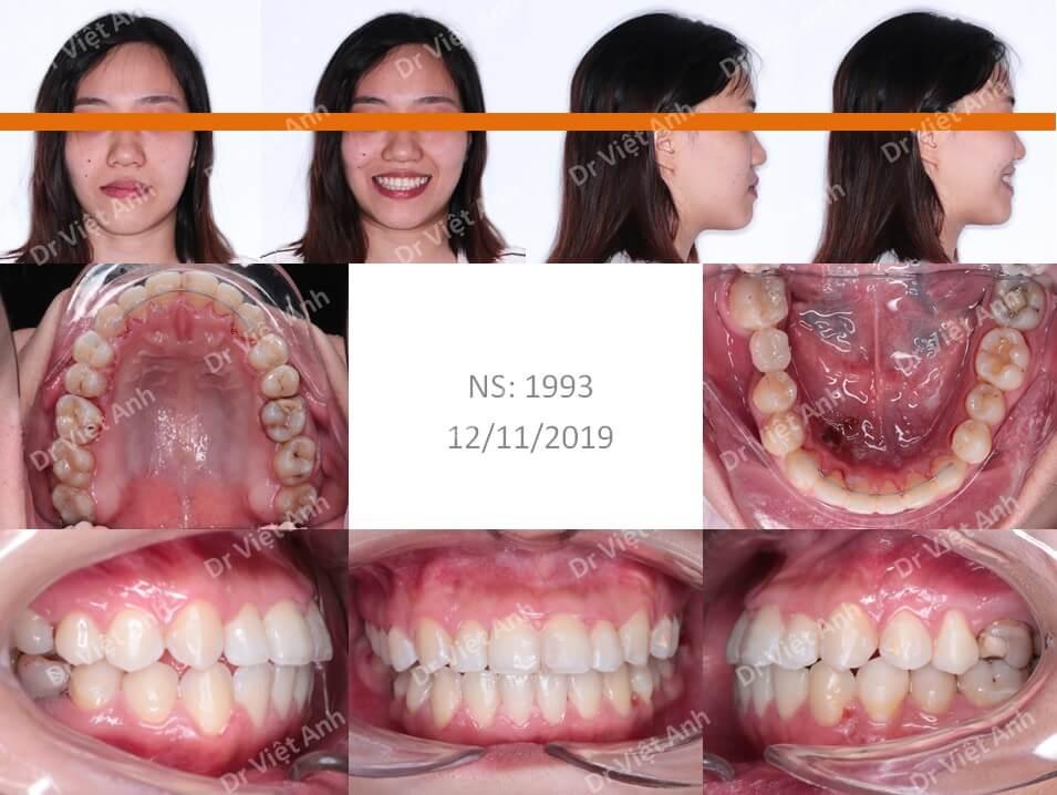 Niềng răng khớp cắn ngược, răng khấp khểnh lộn xộn  4