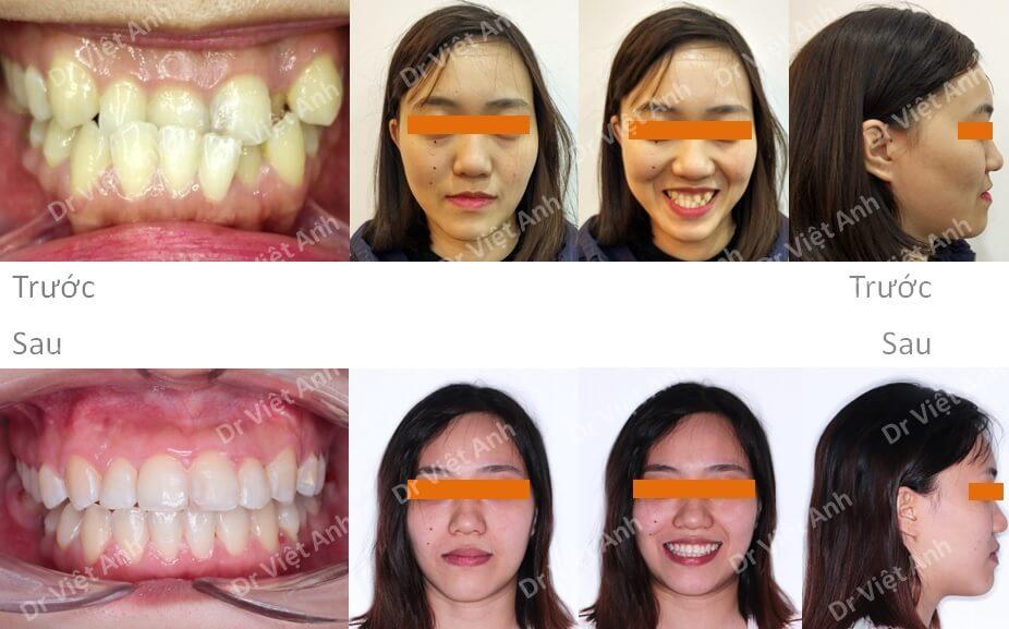 Niềng răng khớp cắn ngược, răng khấp khểnh lộn xộn  3