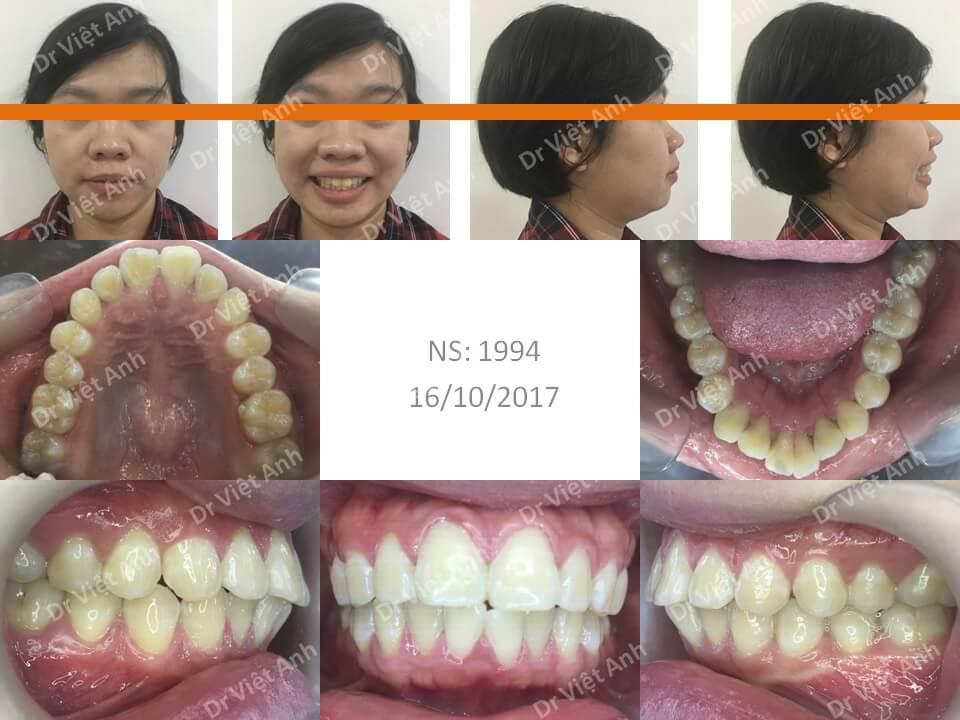 Niềng răng hô cho bạn nữ 23 tuổi