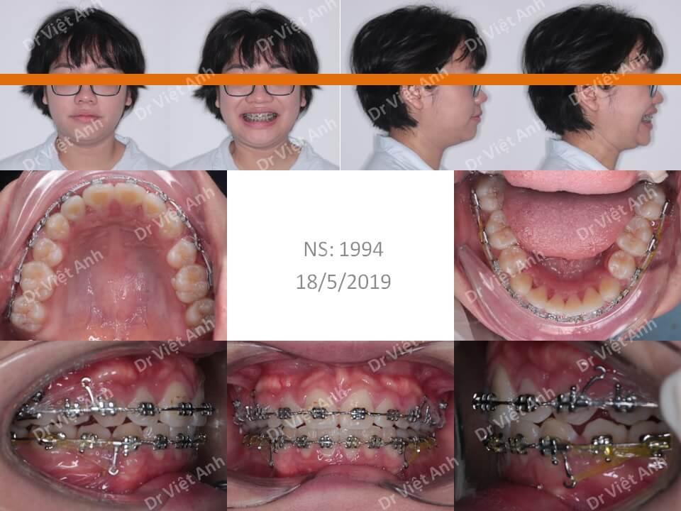 Niềng răng hô cho bạn nữ 23 tuổi 1