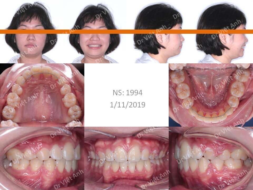 Niềng răng hô cho bạn nữ 23 tuổi 2