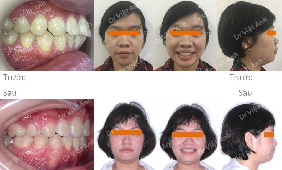 Niềng răng hô cho bạn nữ 23 tuổi 3