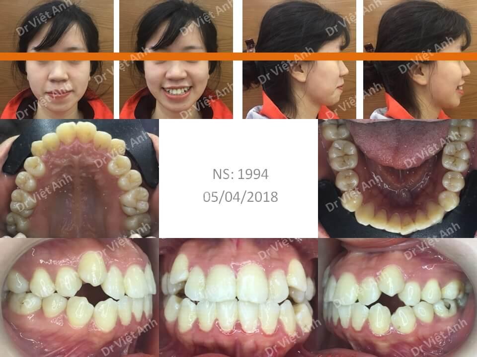 Niềng răng hô, khểnh bằng mắc cài mặt lưỡi có nhổ răng hoàn thành sau 20 tháng