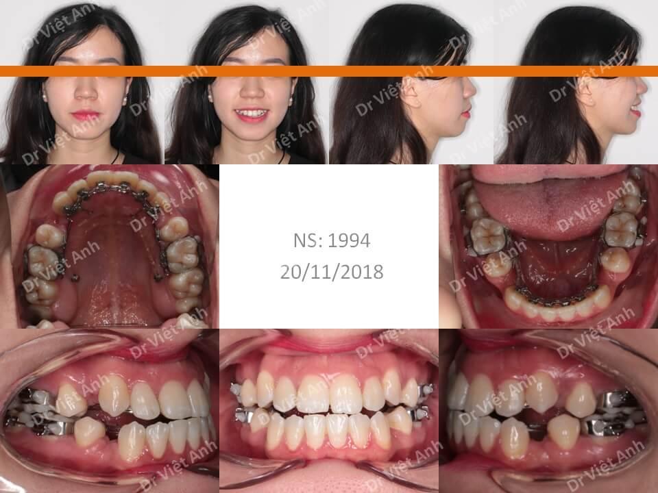 Niềng răng hô, khểnh bằng mắc cài mặt lưỡi có nhổ răng hoàn thành sau 20 tháng 1