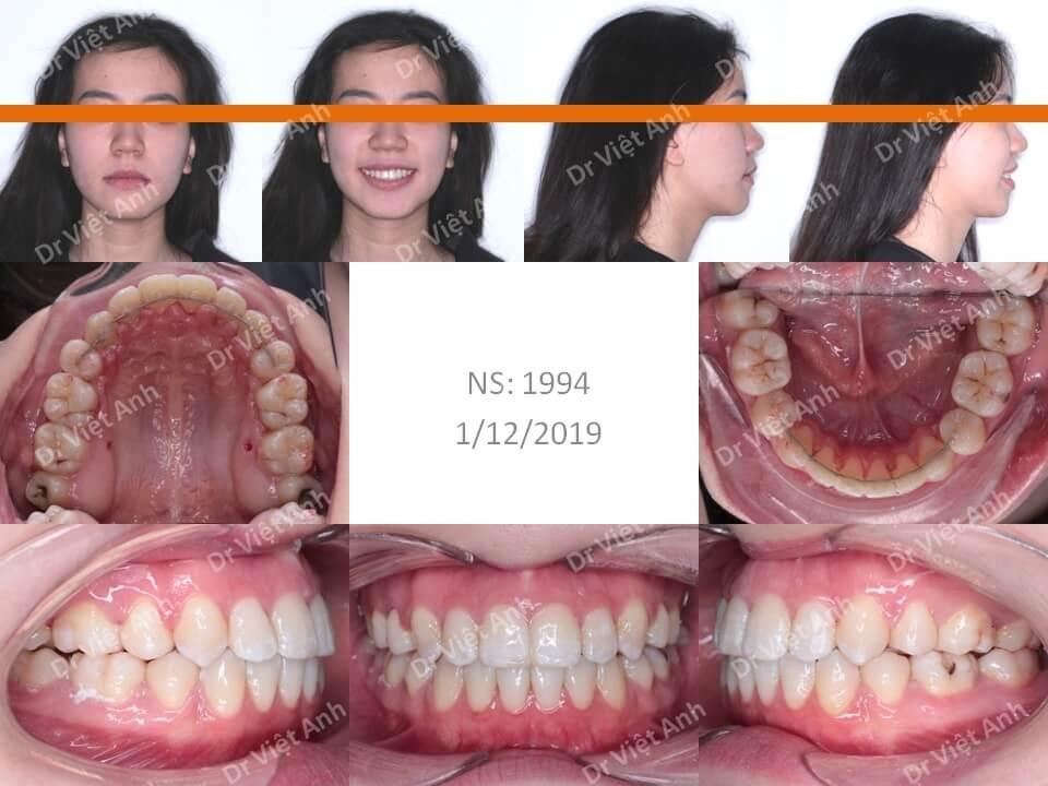 Niềng răng hô, khểnh bằng mắc cài mặt lưỡi có nhổ răng hoàn thành sau 20 tháng 2