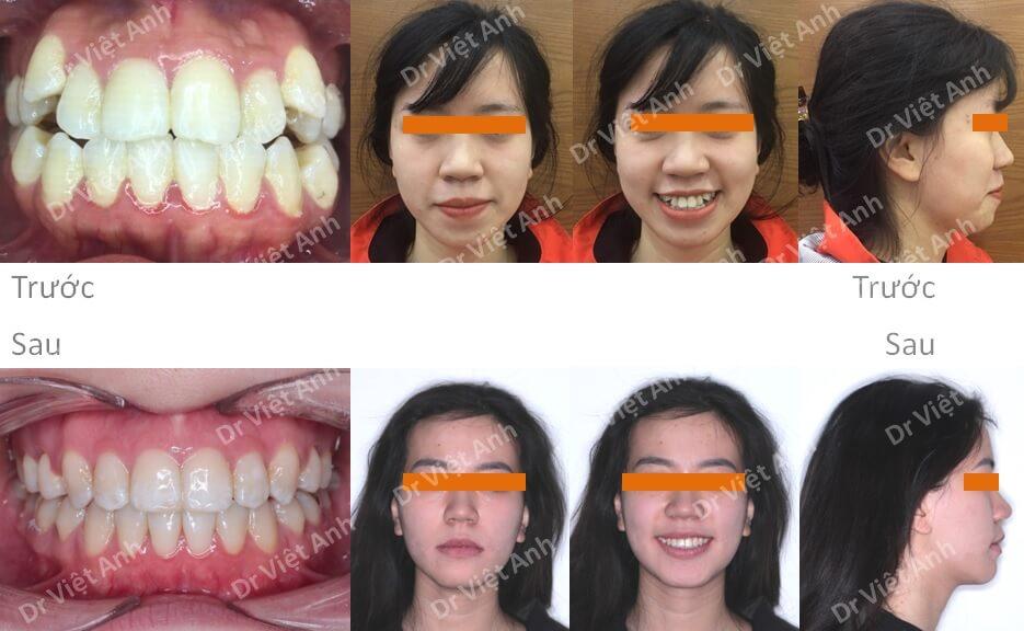 Niềng răng hô, khểnh bằng mắc cài mặt lưỡi có nhổ răng hoàn thành sau 20 tháng 4