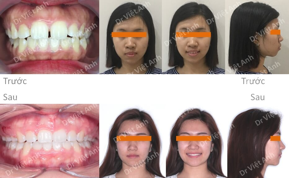 Niềng răng hô, thưa thay đổi góc nghiêng hoàn toàn
