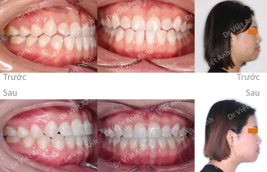Niềng răng móm, khe thưa hàm dưới bằng phương pháp niềng thẩm mỹ