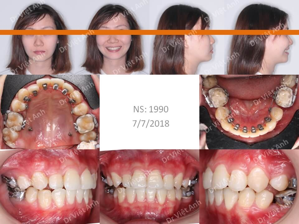 Niềng răng khấp khểnh nặng hoàn thành trong 21 tháng bằng mắc cài mặt lưỡi
