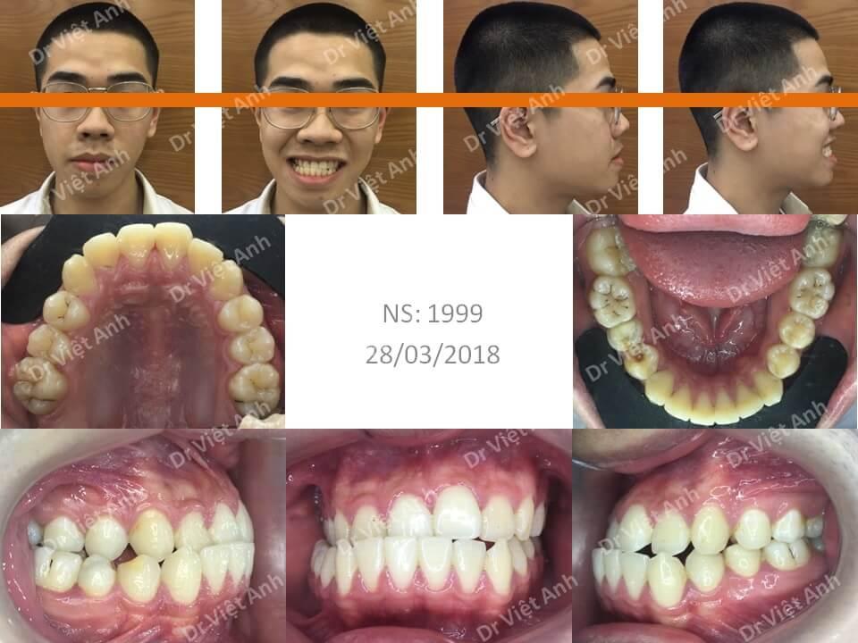 Niềng răng khắc phục tình trạng móm, lệch