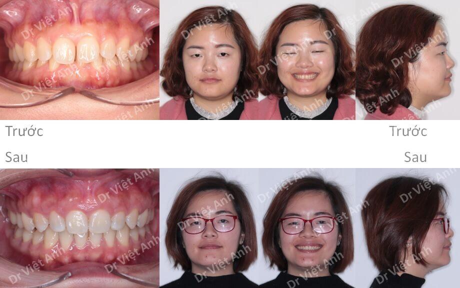 Niềng răng mặt lưỡi khắc phục khớp cắn sâu, cười hở lợi