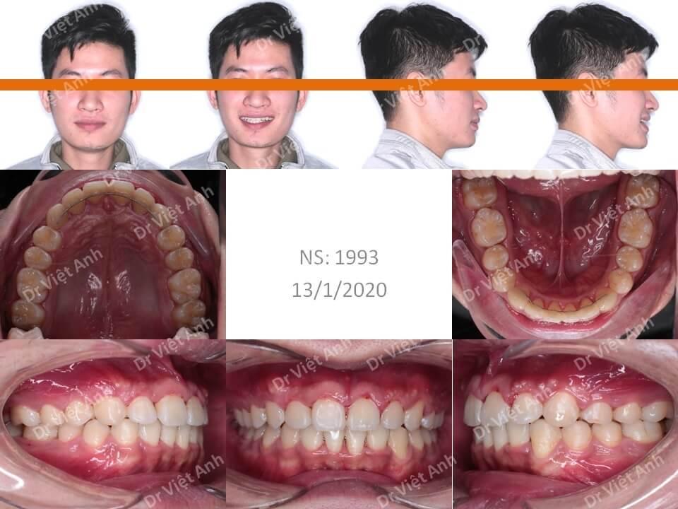 Niềng răng chữa khớp cắn sâu, răng lộn xộn, mặt ngắn sau 1,5 năm